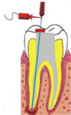 Эод интактного зуба