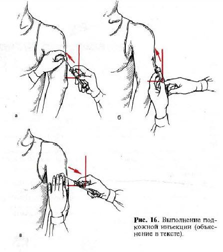 Рисунок зоны укола