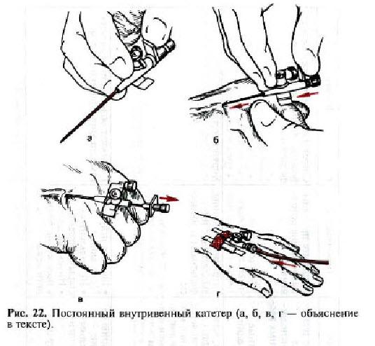Варикозная болезнь вен нижних конечностей симптомы