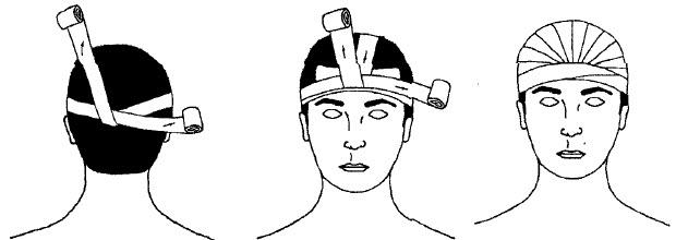 Схема наложения шапочки