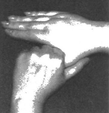 пальцев правой руки,